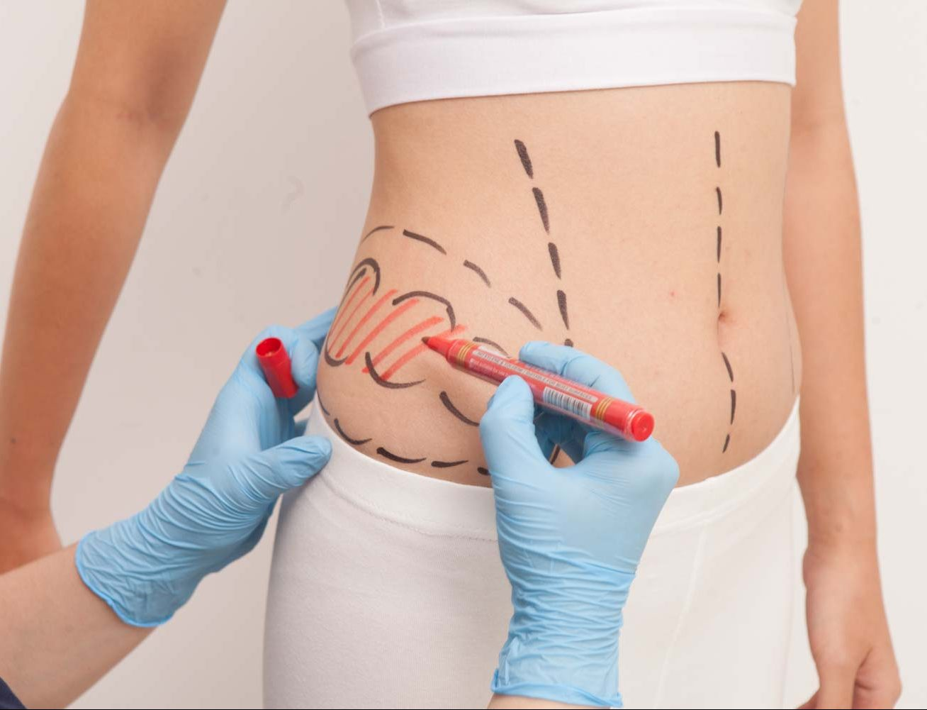 liposuction perut